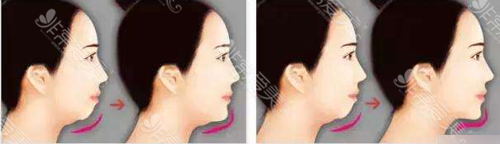 假体垫下巴与下巴截骨前移效果对比