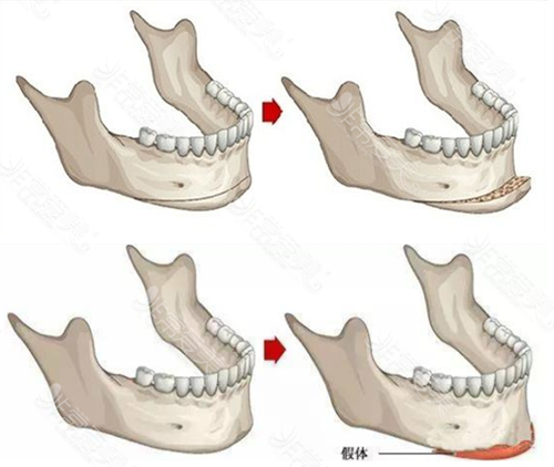 下巴截骨前移与假体垫下巴示意图