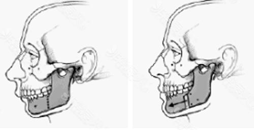 下巴截骨前移手术示意图