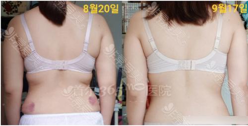 365MC醫院腰腹吸脂案例