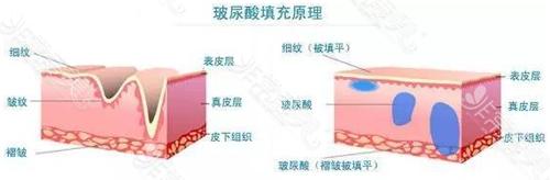 玻尿酸除皺原理示意圖