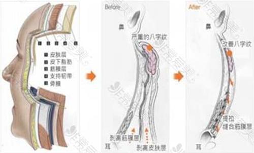 縱深肌理歸位術前后示意圖