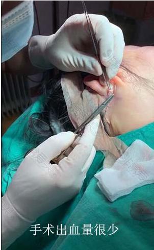 成鎮模院長面部提升手術出血量