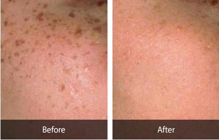 延世starskin皮膚科面部祛斑手術對比圖