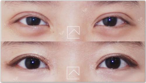 雙眼皮過寬修復手術案例