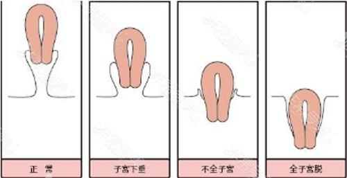 脫垂子宮與正常子宮對比圖