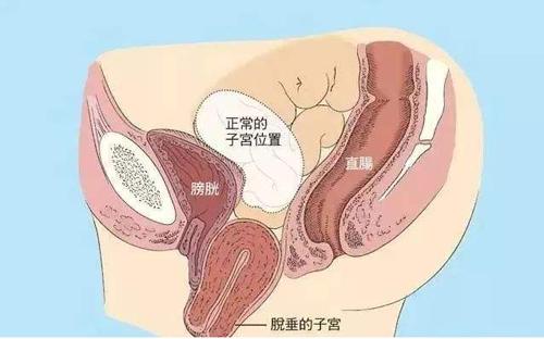 子宮脫垂怎么治療