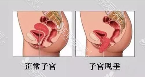 正常子宮與脫垂子宮示意圖