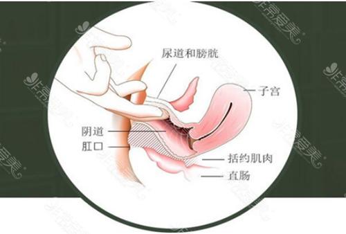 子宮位置示意圖
