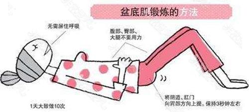盆底肌鍛煉方法