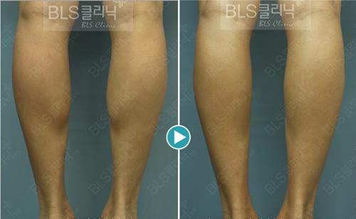 韓國BLS整形醫院瘦小腿手術案例