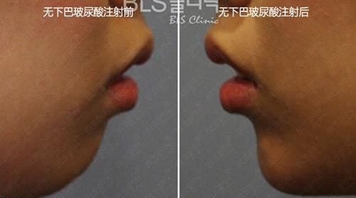 韓國BLS整形外科玻尿酸豐下巴手術案例