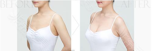 脂肪隆胸手術前后對比圖
