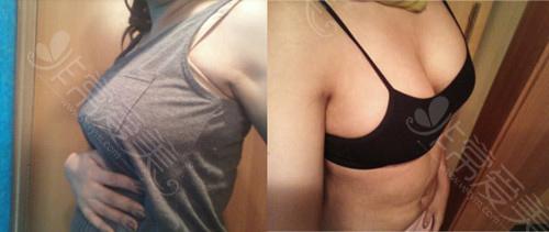 脂肪隆胸術后照片