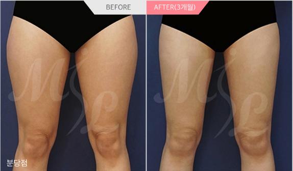 韩国modeline大腿环吸项目对比
