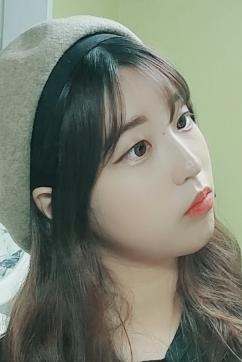 韩国star21注射隆鼻案例对比