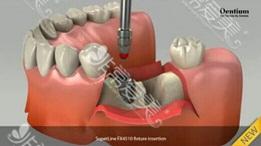异体脱钙骨是肋骨吗