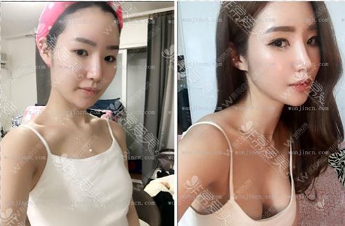 韩国原辰整形医院隆胸前后图