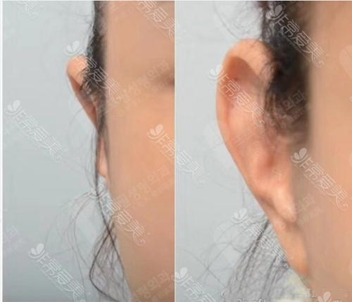 普罗菲耳医院贴脑耳案例