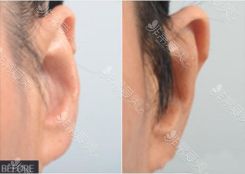 普罗菲耳医院贴脑耳矫正案例