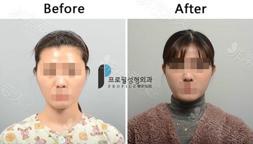 韩国普罗菲耳贴发耳矫正案例