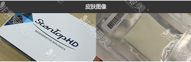 世檀塔男科医院HD真皮生物补片