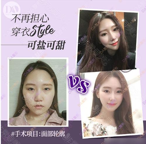 韩国DA整形外科面部轮廓案例