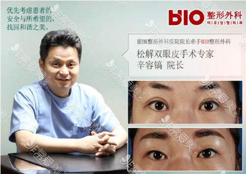 韩国BIO整形医院辛容镐