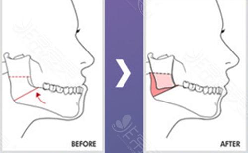 下颚手术简图
