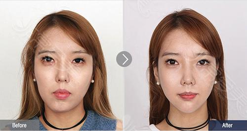 韩国菲斯莱茵整形外科面部不对称手术案例