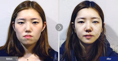 韩国菲斯莱茵地包天手术对比案例