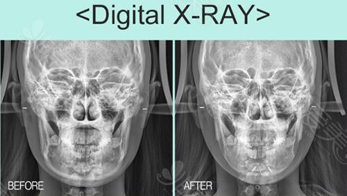 下颌角手术x-ray手术对比图