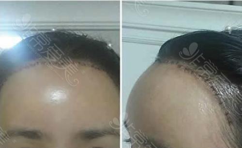 术后即刻疤痕状况图