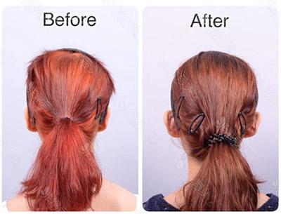贴脑耳手术案例对比图