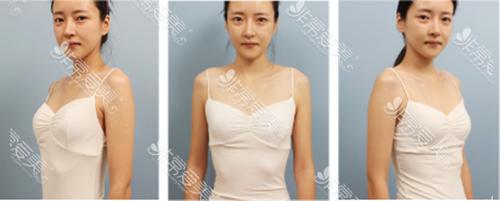 韩国爱我整形外科隆胸术前照片