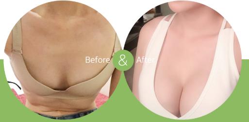 韩国爱我整形外科隆胸对比图片