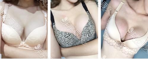 韩国爱我整形外科隆胸术后两个月照片
