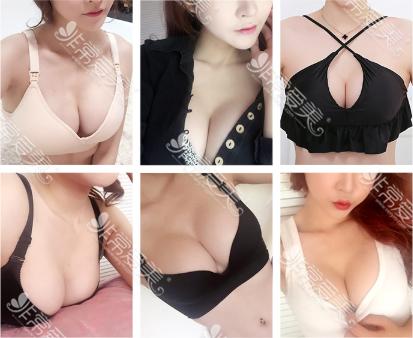 韩国爱我整形外科隆胸效果好吗