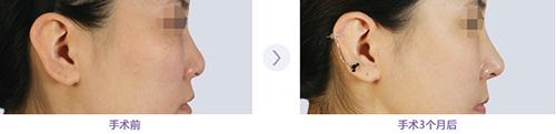 韩国bk鼻部手术案例