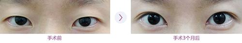 韩国bk眼部手术案例