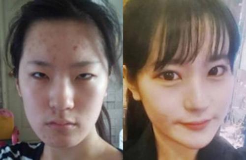 韩国K-BEAUTY整形医院双眼皮案例