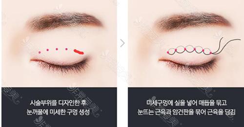 韩国纯真医院五点固定+双重埋线双眼皮方法示意图
