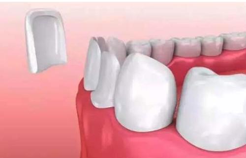 牙齿贴片是如何进行的图解