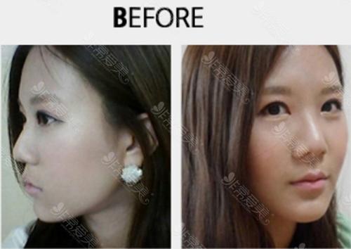 韩国美Plus整形外科隆鼻手术术前图