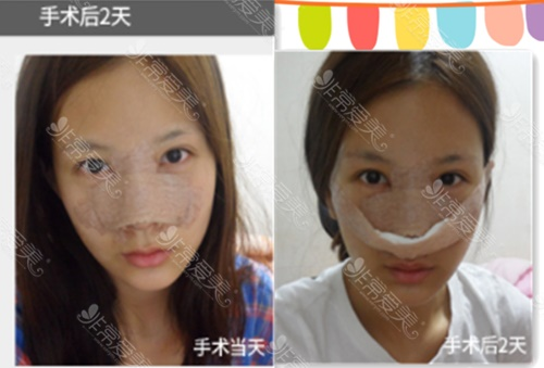 韩国美Plus整形外科鼻综合术后1-7天的照片