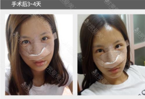 韩国美Plus整形外科隆鼻后7天恢复过程图