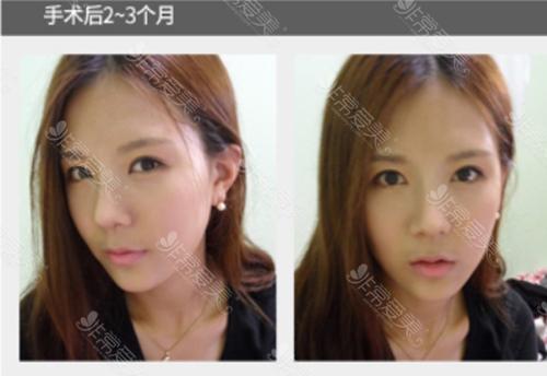 韩国整形好看的鼻子图片