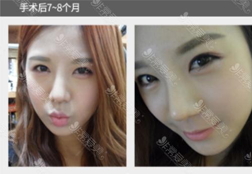 韩国美Plus整形外科鼻部整形效果