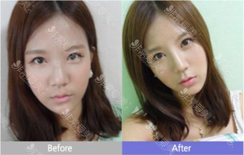 韩国美Plus整形外科鼻整形案例