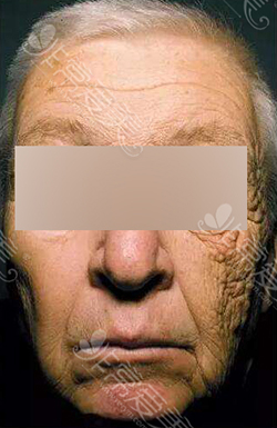 货车司机常年日晒的面部对比